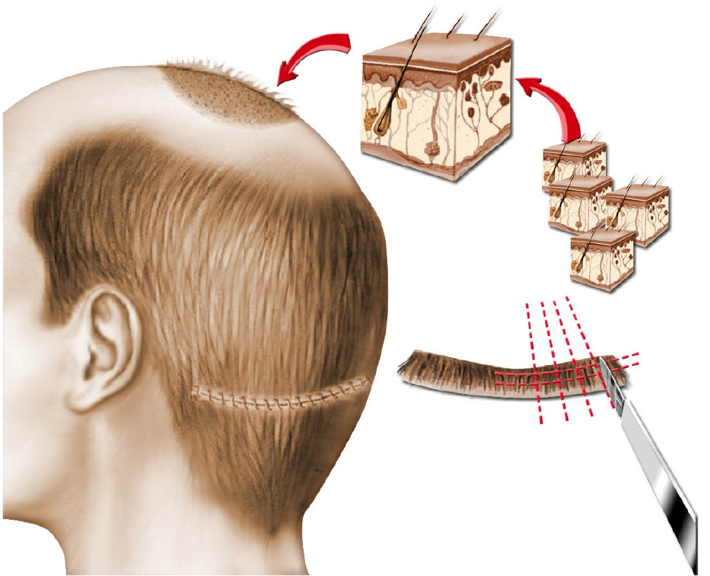 Common questions for hair transplantation in Turkey