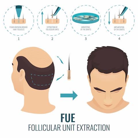 اسئلة حول زراعة الشعر