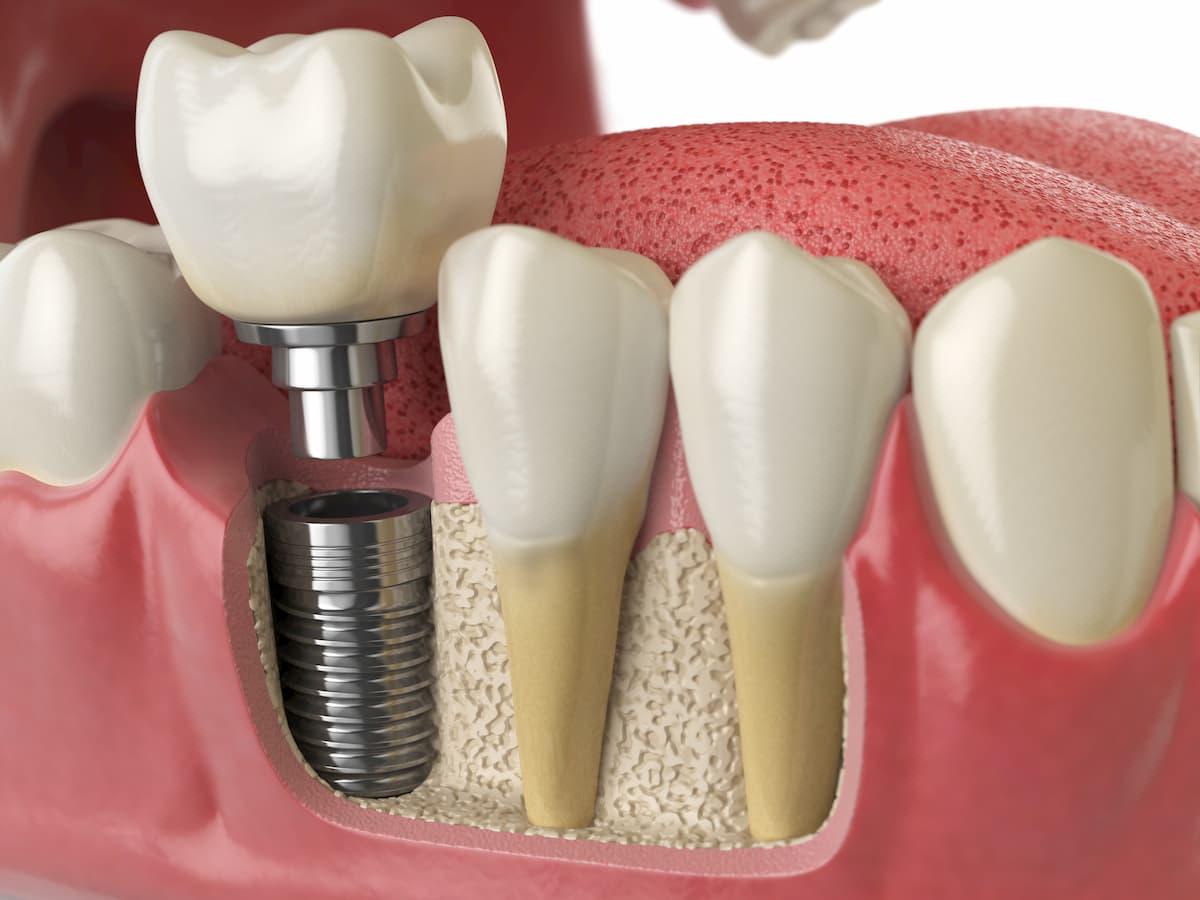 علاجك الطبية زراعة الأسنان الفورية مميزاتها وتكاليفها في تركيا 2021