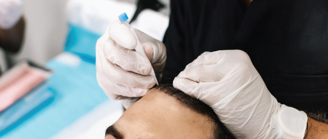Hair transplant without shaving technique