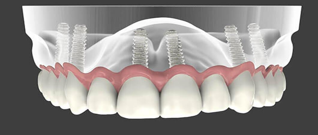 علاجك الطبية تكاليف زراعة الأسنان في تركيا وانواعها 2021