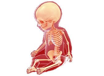 طب العظام للأطفال