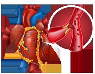 جراحة الأوعية الدموية