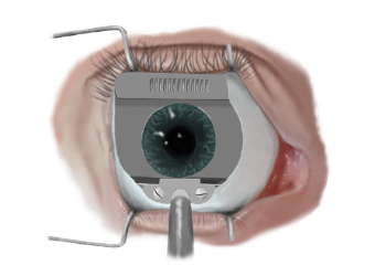 LASIK Surgery for eyes