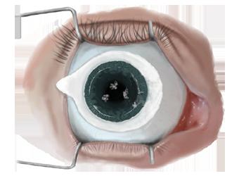 SMILE Eye Surgery
